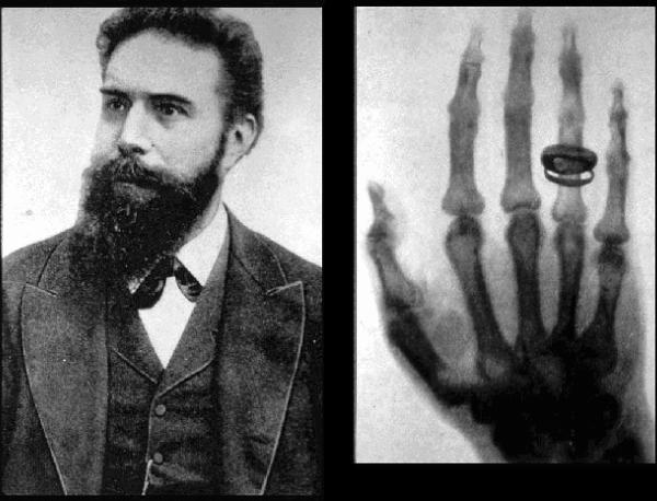 Резултат с изображение за Вилхелм Рьонтген